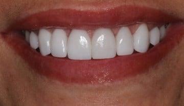 amazing dental transformation
