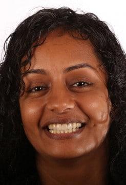 Dr. Hill used custom orthodontics to straighten Sara's teeth.