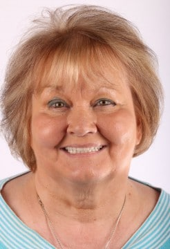Dr. Chris Hill designed a custom Fountain of Youth denture to replace Carol's top teeth.