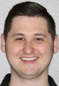 This patient had his upper and lower teeth restored to give him a confident smile