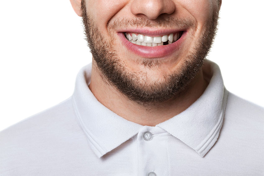 young man in polo shirt smiles, showing off a missing tooth